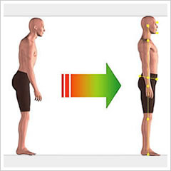 カイロプリント(姿勢の画像検査)